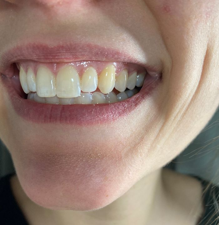 How To Whiten Your Teeth Using Coconut Oil Baking Soda Secretly Healthy Home