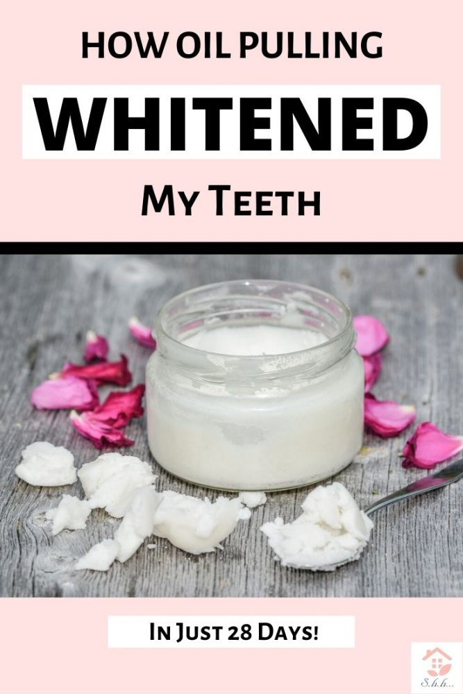 How Oil pulling whitening my teeth in just 28 days pinterest pin